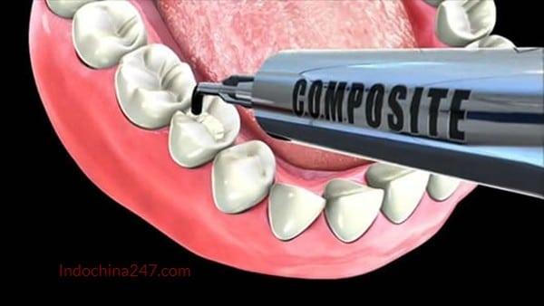 Trám răng thẩm mỹ bằng composite nhập từ Mỹ