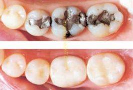 Trám răng thẩm mỹ nhập từ Mỹ