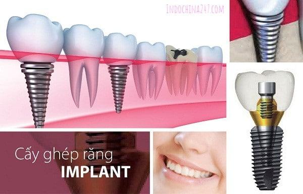 Trồng răng implant nhập từ Mỹ