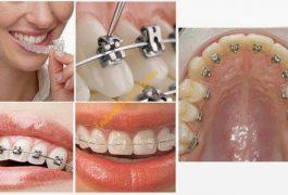 Các loại niềng răng mắc cài nhập từ Mỹ