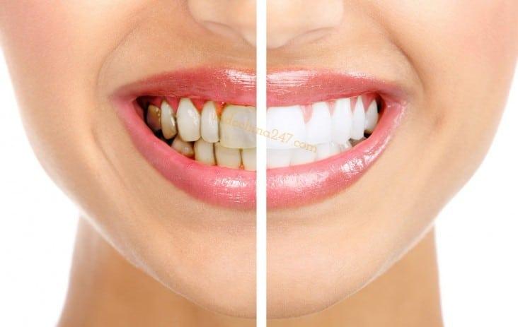 Thuốc tẩy trắng răng tại nhà nhập từ Mỹ